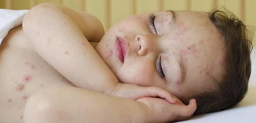 Kenali 3 Alergi yang Paling Sering Diderita Bayi dan Cara Mengatasinya
